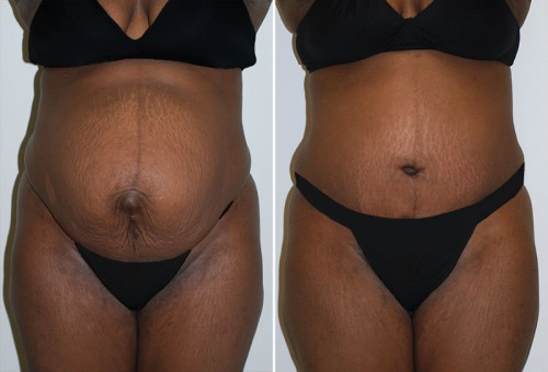 New Orleans Abdominoplasty