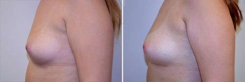 breast-augmentation-fat-grafting-01c-left-moses