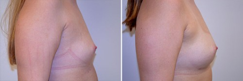 breast-augmentation-fat-grafting-01c-right-moses