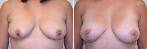 breast-fat-graft-mastopexy-01a-moses
