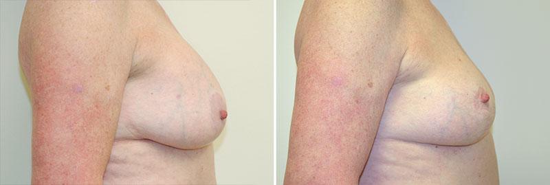 amateur nipple photos