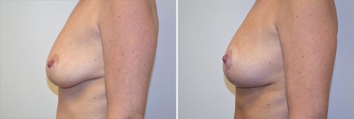 breast-lift-with-fat-grafting-enlargement-08c-left