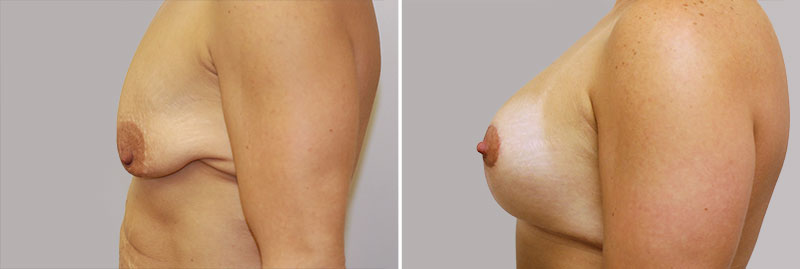 breast enlargement after weight loss