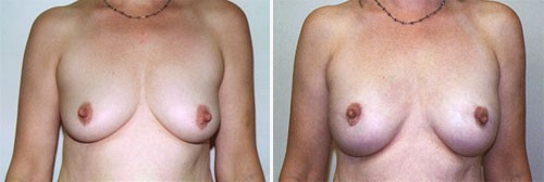 breast-reconstruction-01a