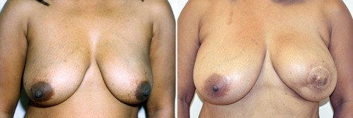 breast-reconstruction-02a-moses