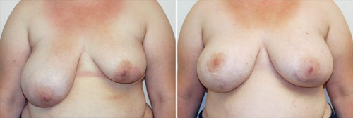 breast-reduction-07a-asymmetry