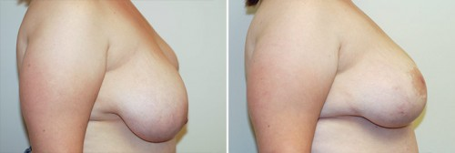 breast-reduction-07b-right-asymmetry