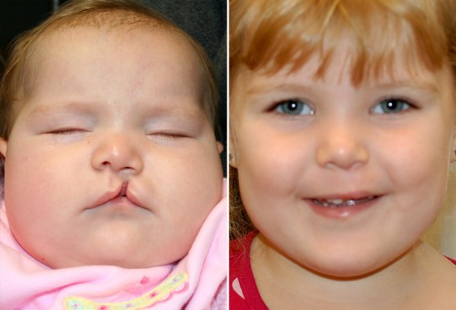 New Orleans Cleft Lip Repair 1