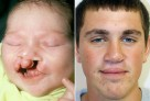 Cleft Lip Repair