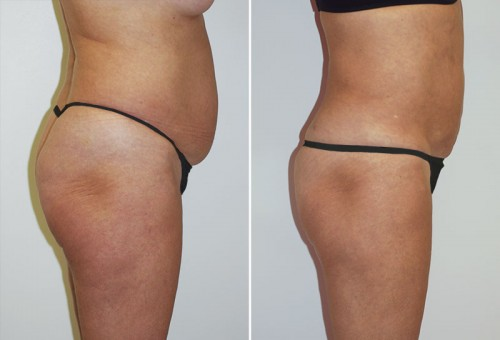 New Orleans Liposuction