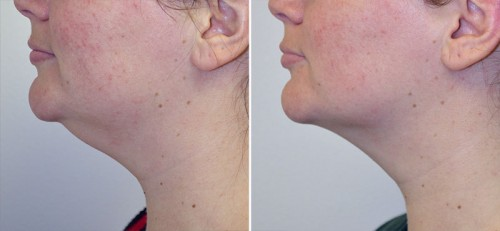neck-liposuction-01c-left-moses