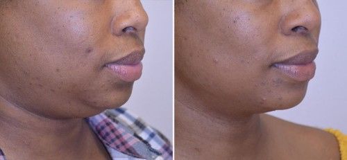 neck-liposuction-02b-moses