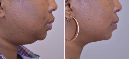 neck-liposuction-02c-moses