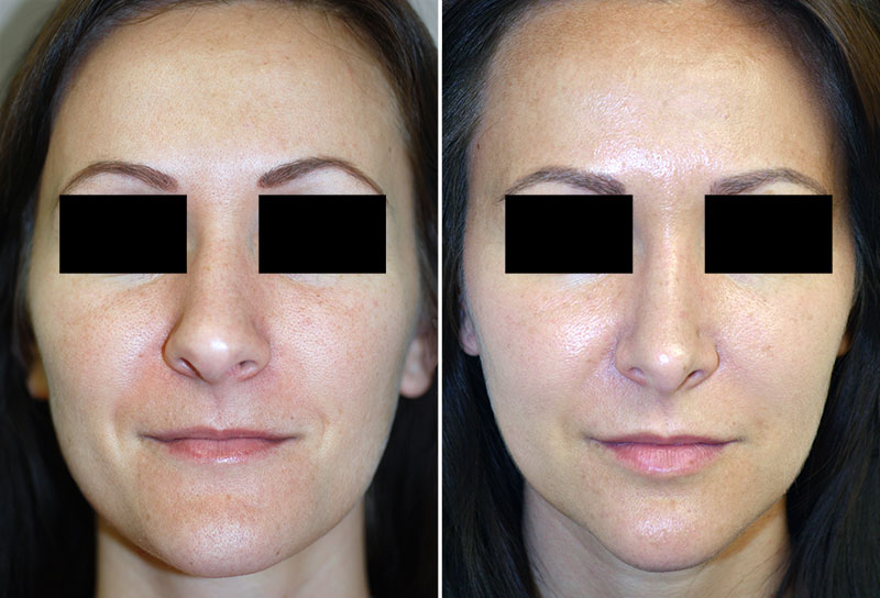 Rhinoplasty Before And After Plastic Surgery Images New