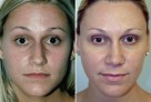 Rhinoplasty (Nose Job)