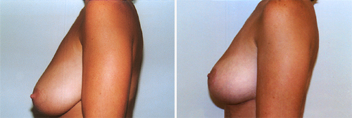 Breast-lift-patient-01b