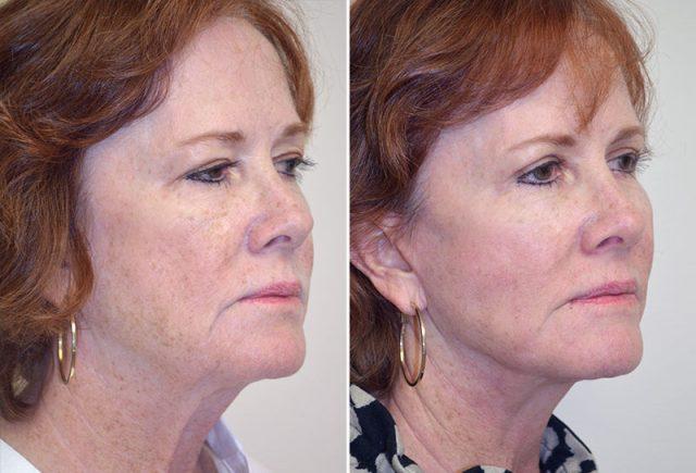 facelift-fat-graft-upper-bleph-08b-moses