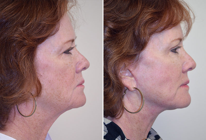 facelift-fat-graft-upper-bleph-08c-moses