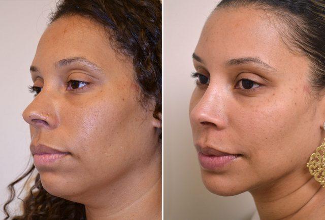 rhinoplasty-chin-implant-with-liposuction-10-b-moses