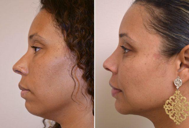 rhinoplasty-chin-implant-with-liposuction-10-c-moses