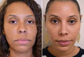 Rhinoplasty and Chin Implant Patient 7
