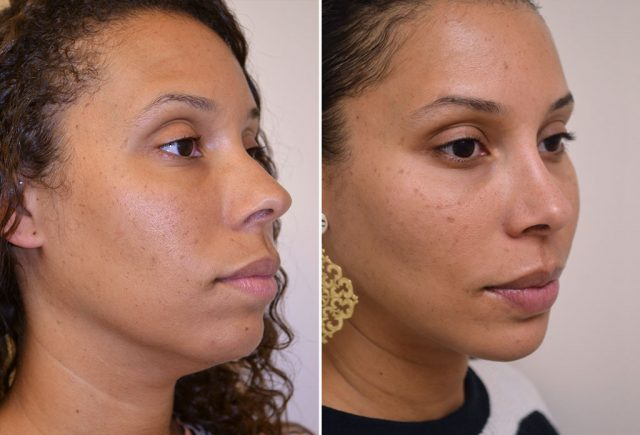 rhinoplasty-chin-implant-with-liposuction-10b-moses