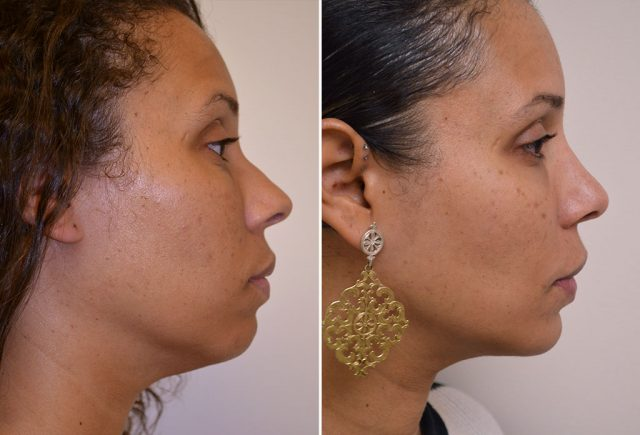 rhinoplasty-chin-implant-with-liposuction-10c-moses