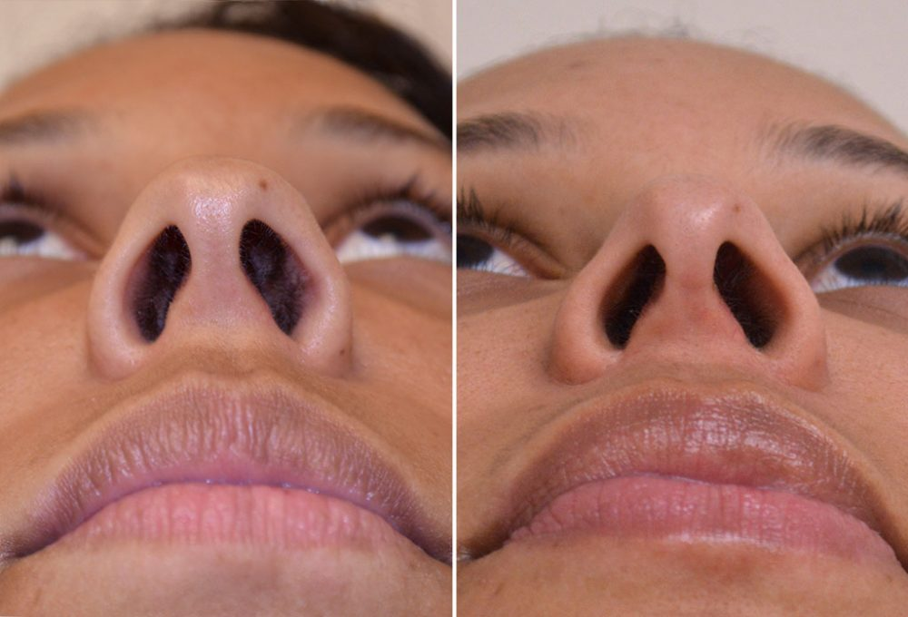 rhinoplasty-chin-implant-with-liposuction-10g-moses