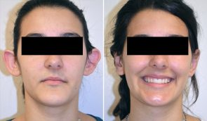 Otoplasty Patient 4