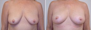 Breast Lift with Fat Grafting Patient 13