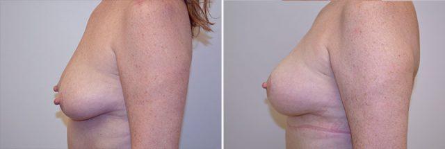 breast-lift-fat-grafting-13c-left-moses