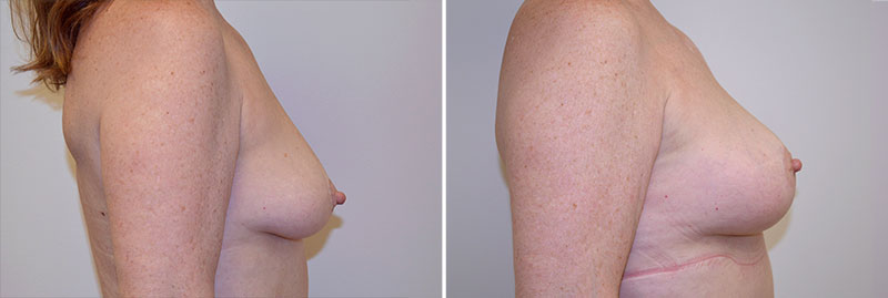 breast-lift-fat-grafting-13c-right-moses