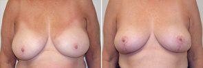Breast Reduction Patient 13
