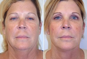 Facelift with Fat Grafting Patient 9