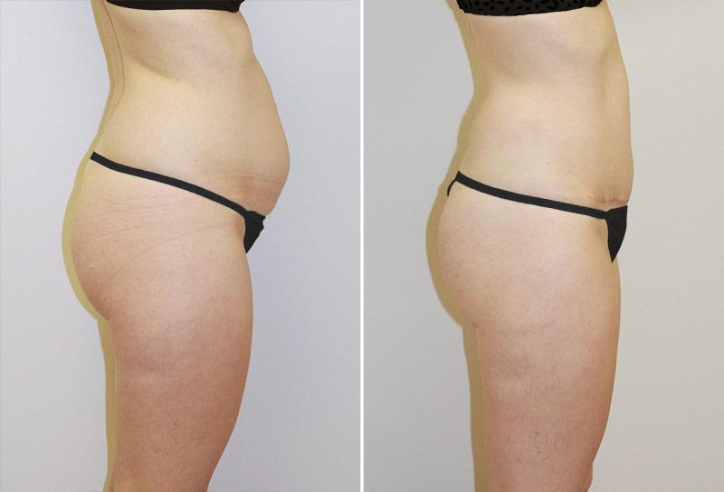 abdominoplasty-liposuction-02c