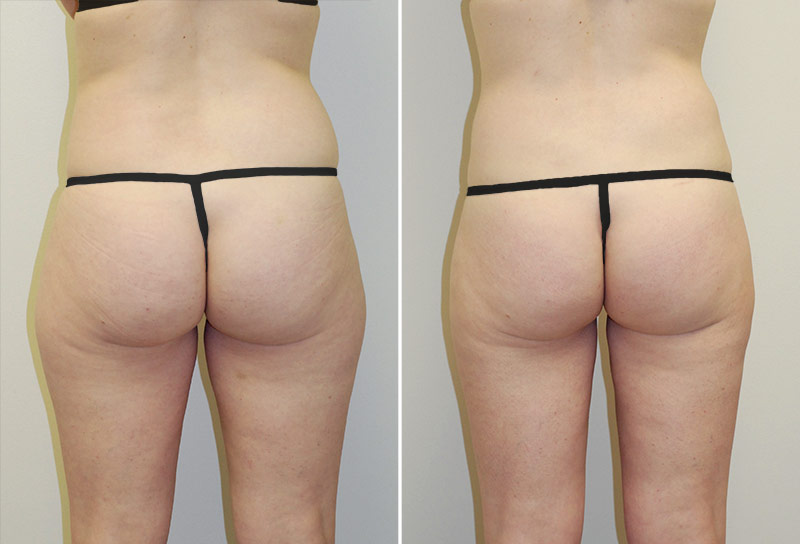 abdominoplasty-liposuction-02d