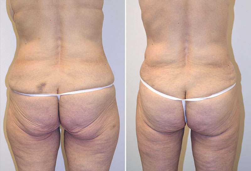abdominoplasty-liposuction-03d-moses