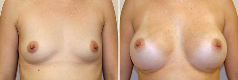 Breast Augmentation Patient 6