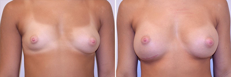 breast-augmentation-asymmetry-12a-moses