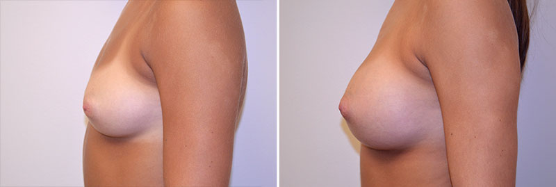 breast-augmentation-asymmetry-12c-left-moses