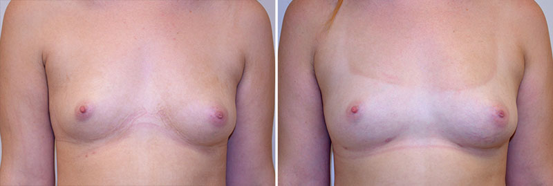 Micro-fat Grafting Breast Patient 2