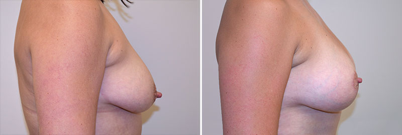 Breast Lift with Fat Grafting Patient 11