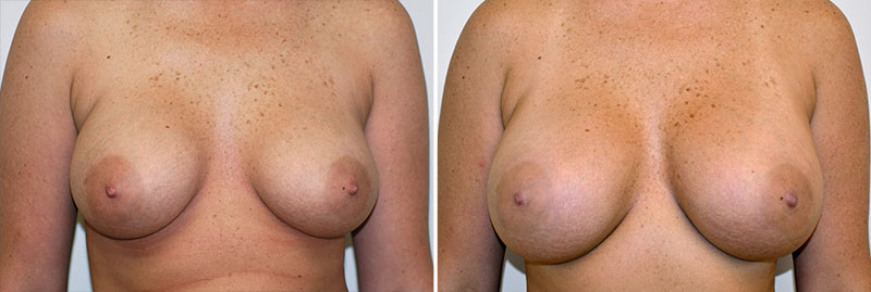 breast-implant-exchange-saline-to-silicone-01a