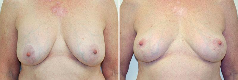Breast Lift Patient 6