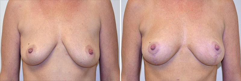 Breast Lift Patient 7