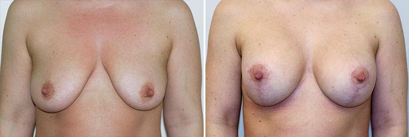 Breast Lift Patient 10