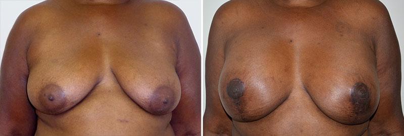 Breast Lift Patient 9