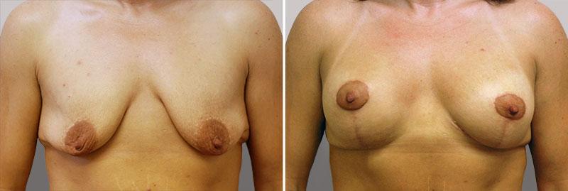 Breast Lift Patient 8