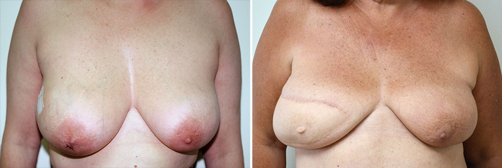 Breast Reconstruction Patient 3