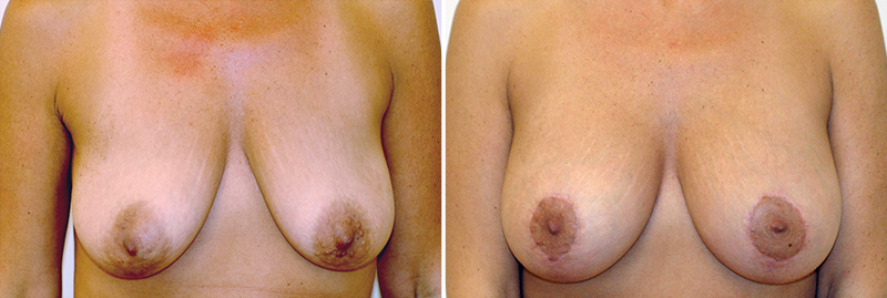 Breast Lift with Augmentation Patient 2